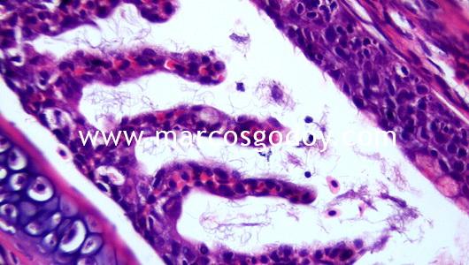 flavobacterium-iii