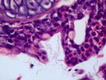 flavobacterium-small4