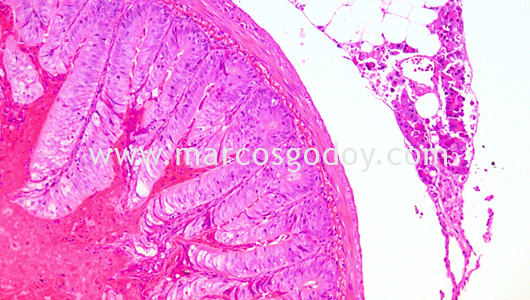ipnv-post-sewater-transfer-histopathology-ix