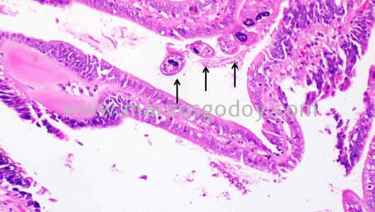 mantoscyphidia-concholepas-i