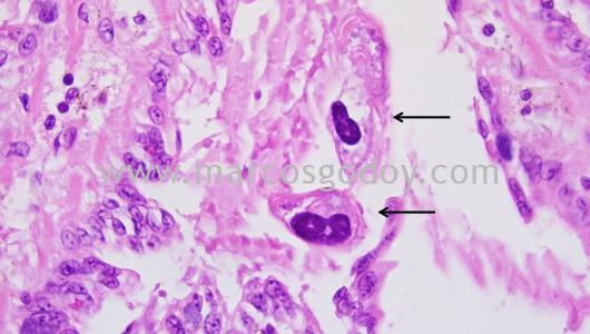 mantoscyphidia-concholepas-iv