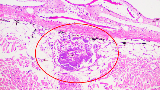 atypical-furunculosis-iv