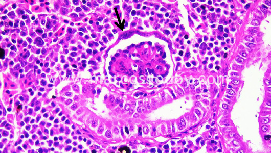 glometulonefritis-viii