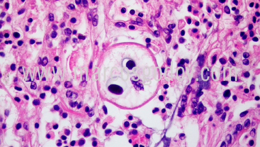 apicomplexa-prothotaca-thaca-i