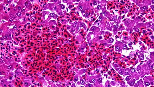 peliosis-hepatis-ib