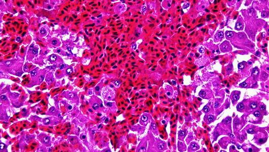 peliosis-hepatis-iib