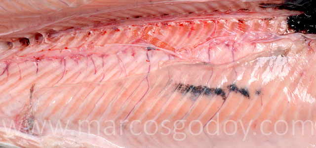Melanosis Gross V